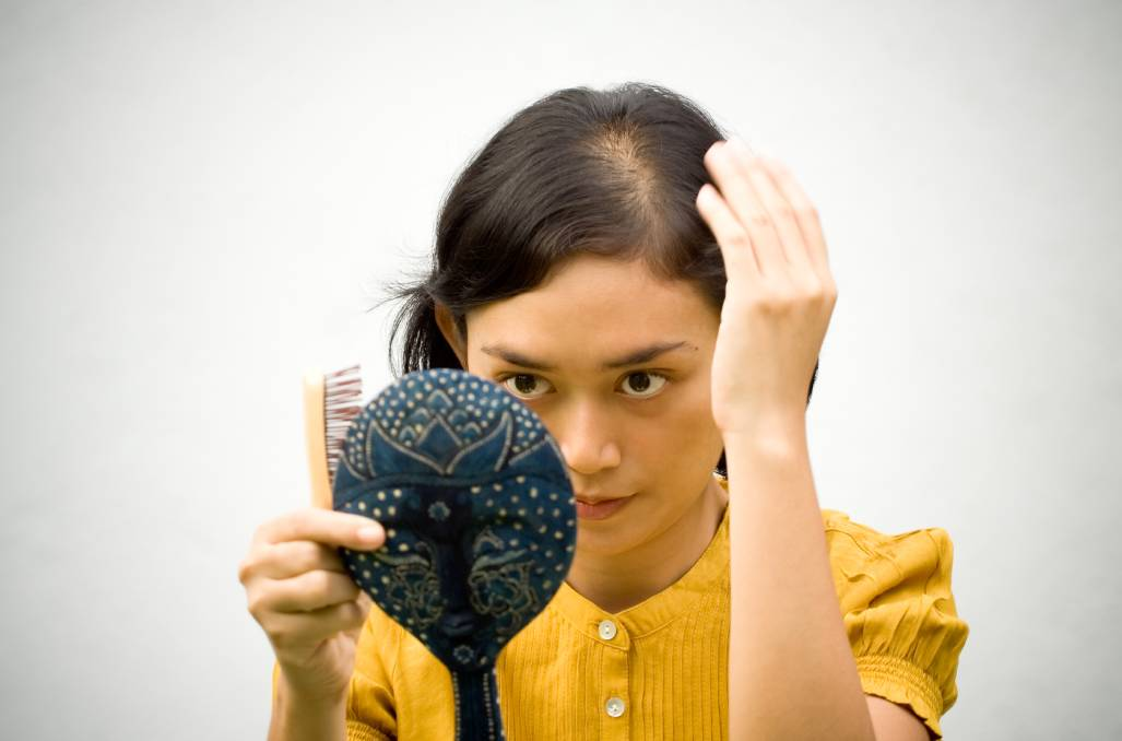 Hair loss affects women too, with about 30 to 40 per cent experiencing balding by the time they reach menopause. Picture: Shutterstock.